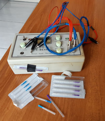 Equipo de acupuntura. Foto: M. Murillo