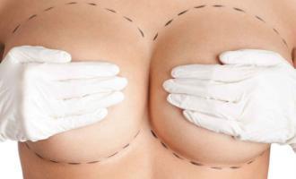 Esté pendiente de alguna señal extraña en sus mamas. Foto ilustrativa: Internet